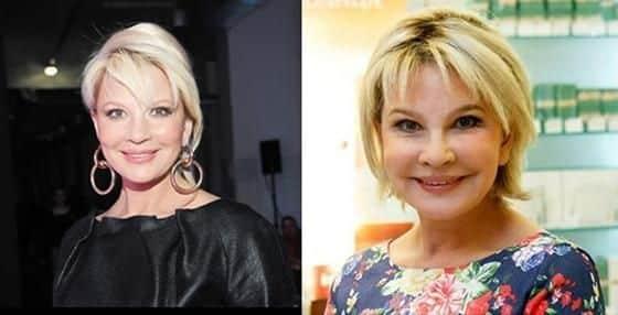 Фото Татьяны Веденеевой до и после пластики