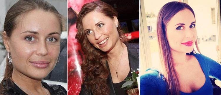 Фото Юлии Михалковой до и после пластики