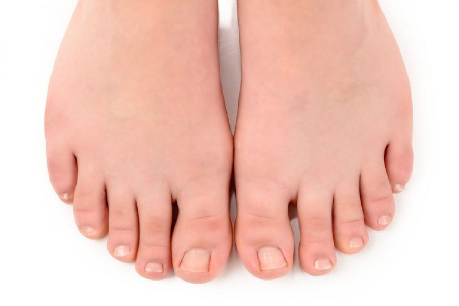 Онихокриптоз — Вросший ноготь на большом пальце ноги. Лечение в домашних условиях