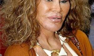 Топ 10 самых неудачных операций по увеличению губ