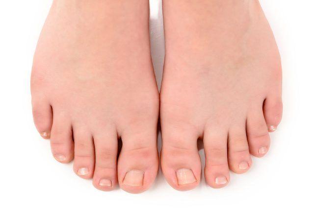 Онихокриптоз - Вросший ноготь на большом пальце ноги. Лечение в домашних условиях