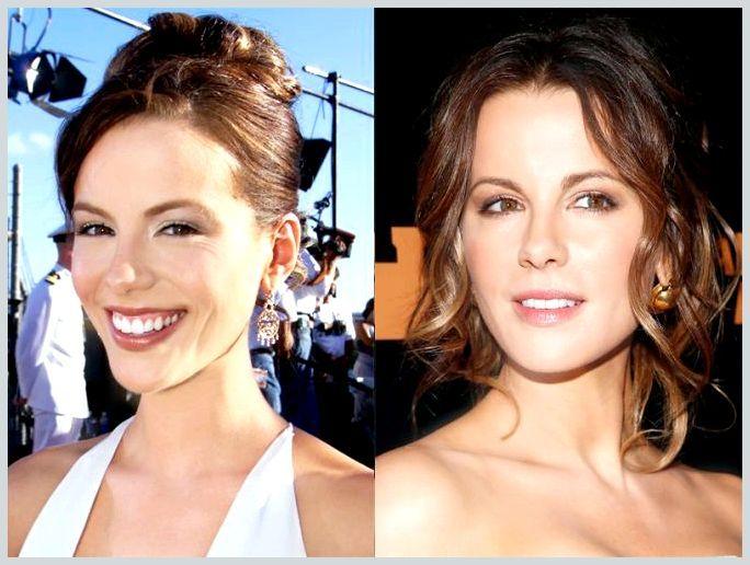 Кейт Бекинсейл фото до и после пластики