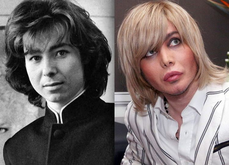Фото Сергея Зверева до и после пластики