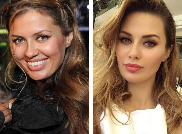 Виктория Боня до и после пластики фото