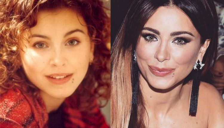 Фото Ани Лорак до и после пластики фото