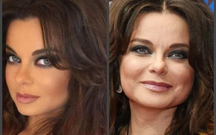 Фото Наташи Королевой до и после пластики