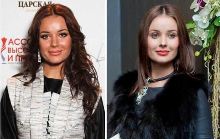 Фото Оксаны Федоровой до и после пластики
