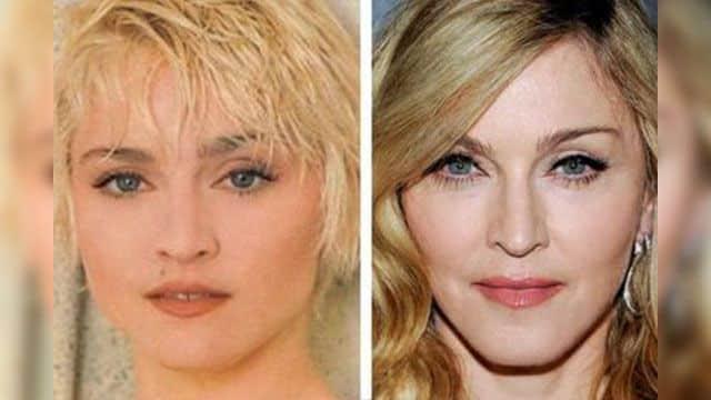 Горячие фото Мадонны до и после пластики